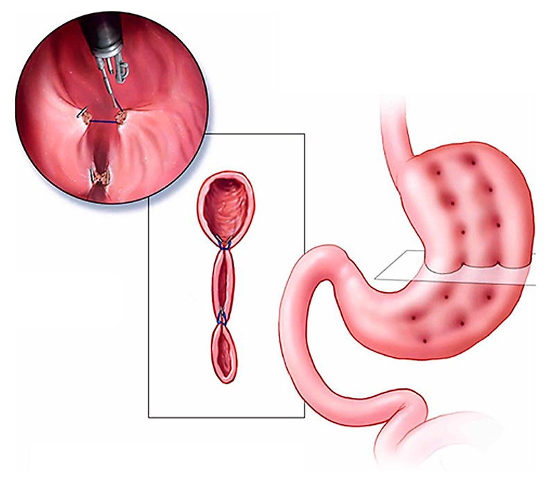 Endoscopic Sleeve Gastroplasty Esg Non Surgical Weight Loss